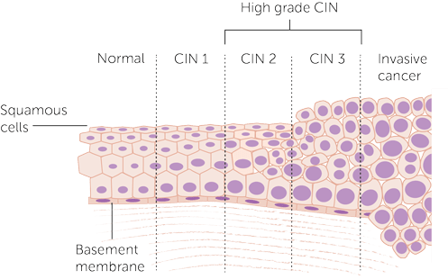Diagram-showing-the-stages-of-CIN_0